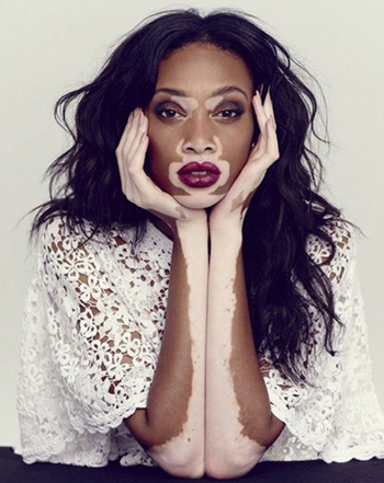 Winnie Harlow er klar for årets utgave av Victoria´s Secret Fashion Show.